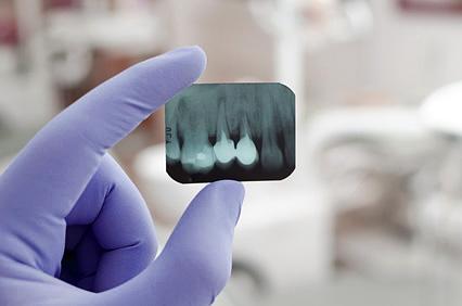 Zahnarzt Freiburg Endodontie Wurzelkanalbehandlung
